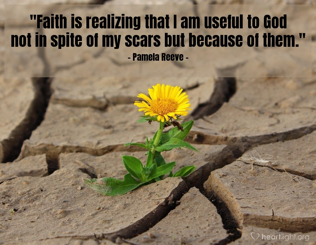 """Illustration of Pamela Reeve — """"Faith is realizing that I am useful to God not in spite of my scars but because of them."""""""
